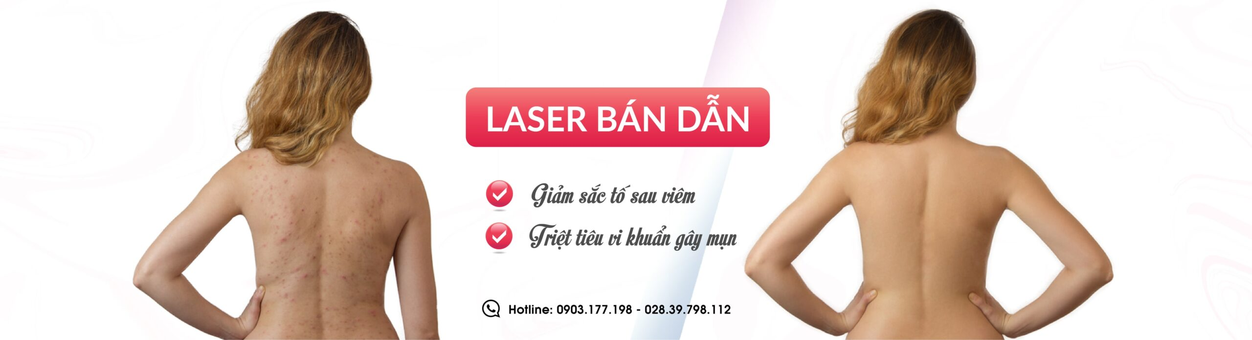laser bán dẫn triệt tiêu vi khuẩn gây mụn